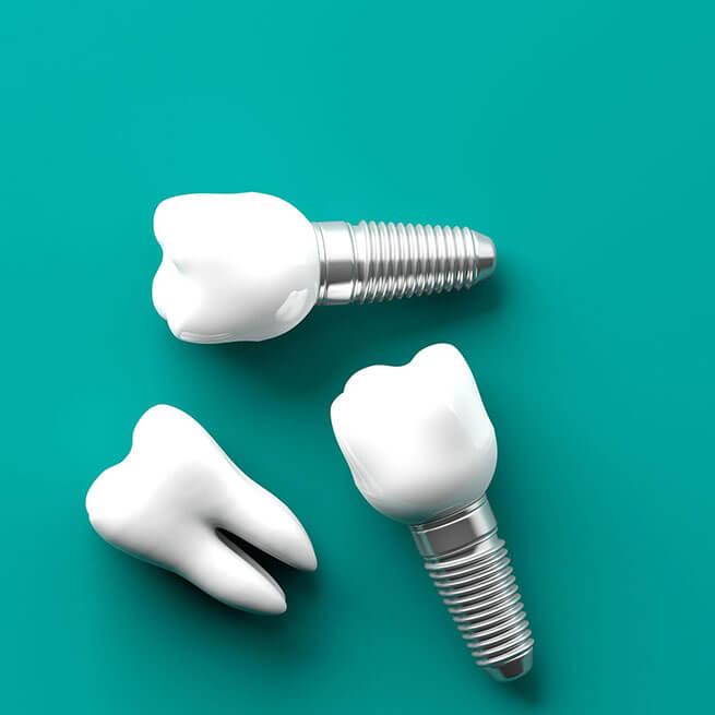 Імплантація зубів у медичному центрі