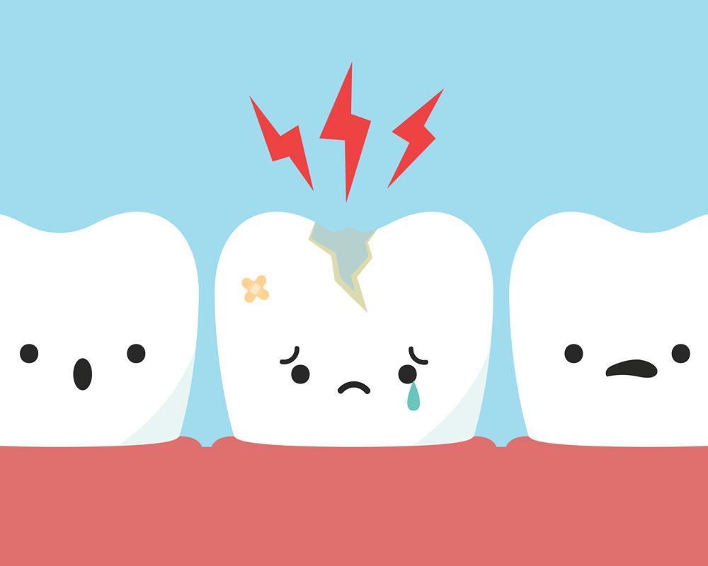 Тріщини зубів