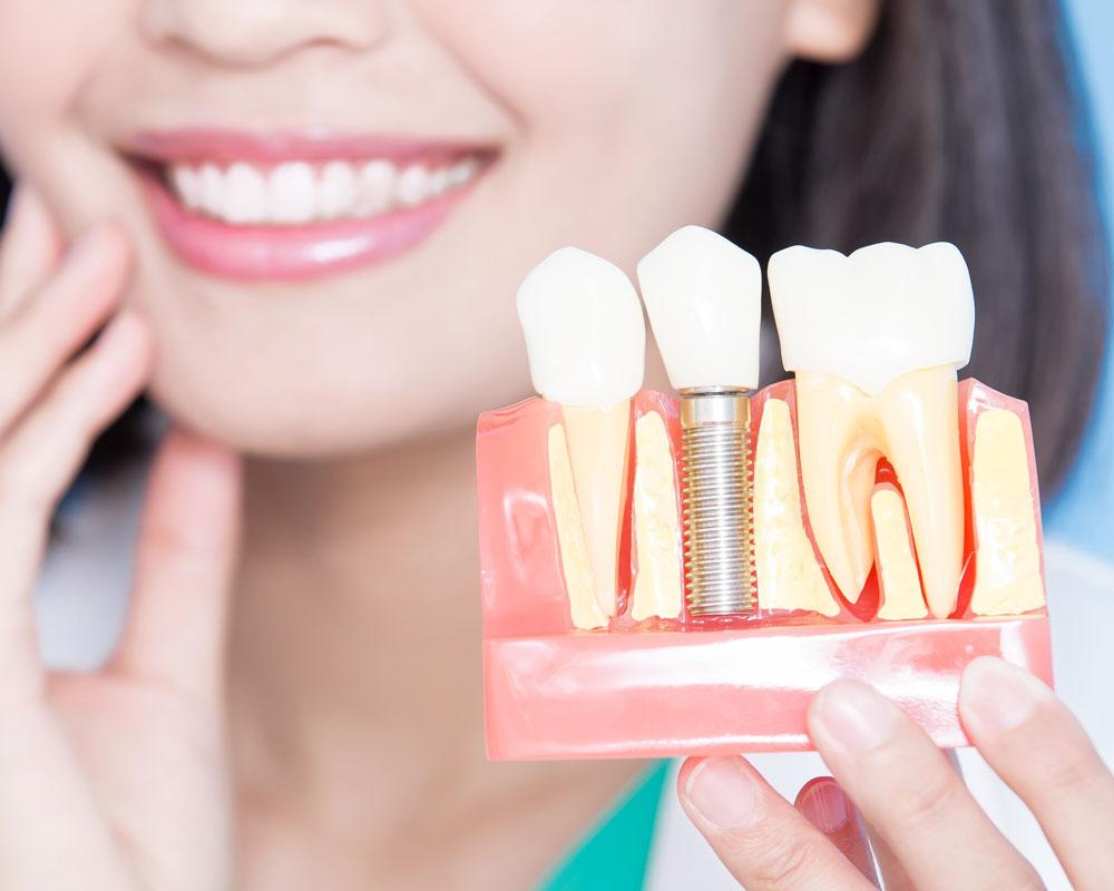Имплантация зубов: скорее да, чем нет!